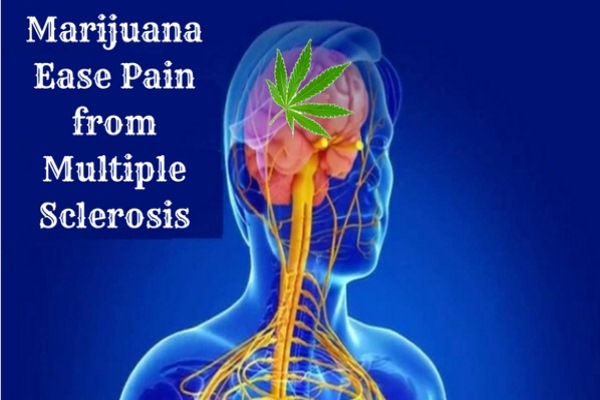 Ease Pain from Multiple Sclerosis - Health Benefits for Growing Marijuana in Your Garden